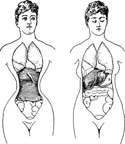 corset distortion